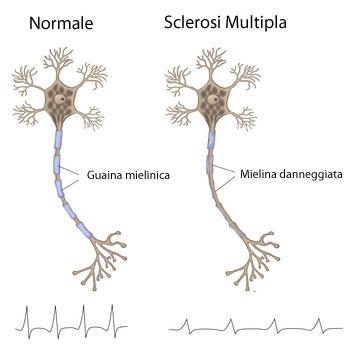 Sclerosi Multipla Mielina